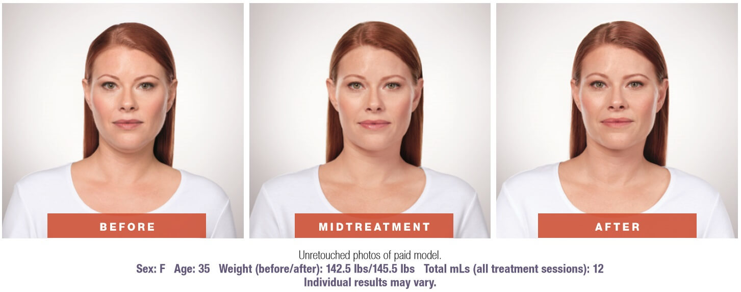 Kybella Front before and after