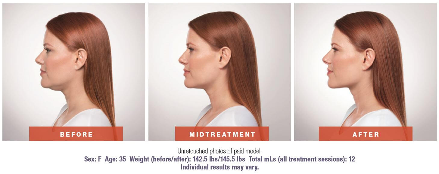 Kybella side before and after