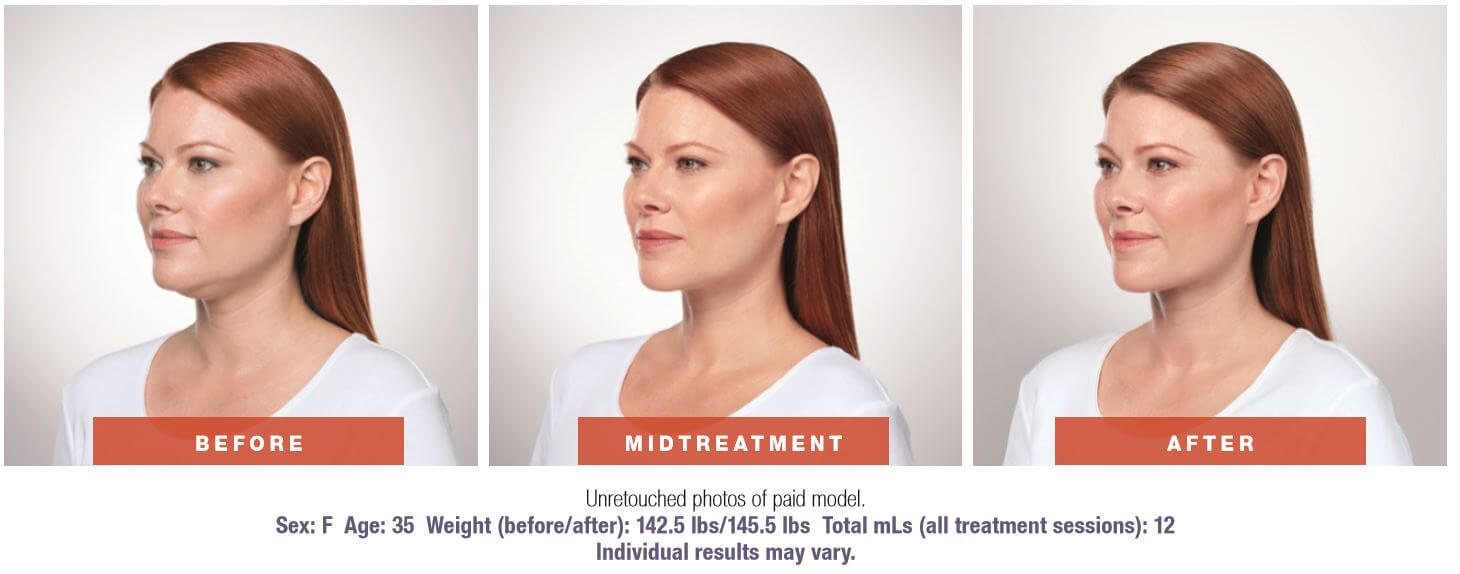Kybella angled before and after