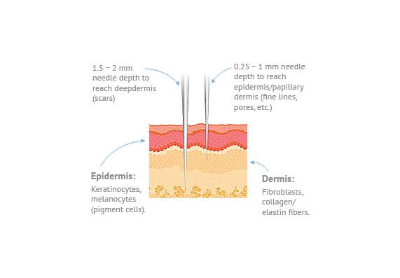 SkinPen Info