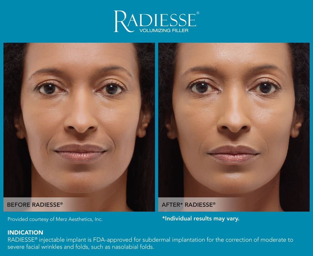 Radiesse_before_and_after-1296x728-gallery_slide2
