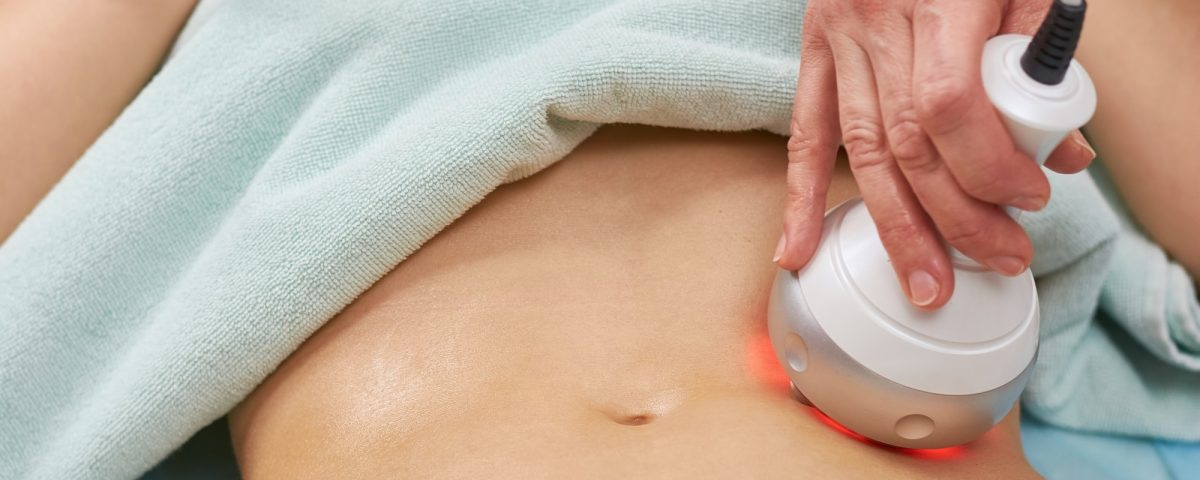 RF skin tightening on belly