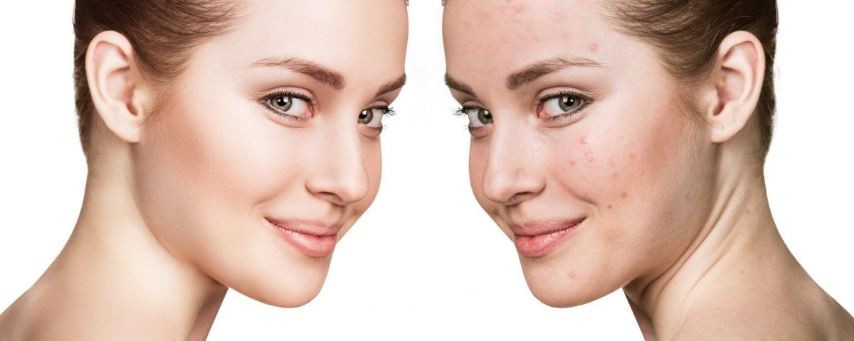 women with acne then no acne